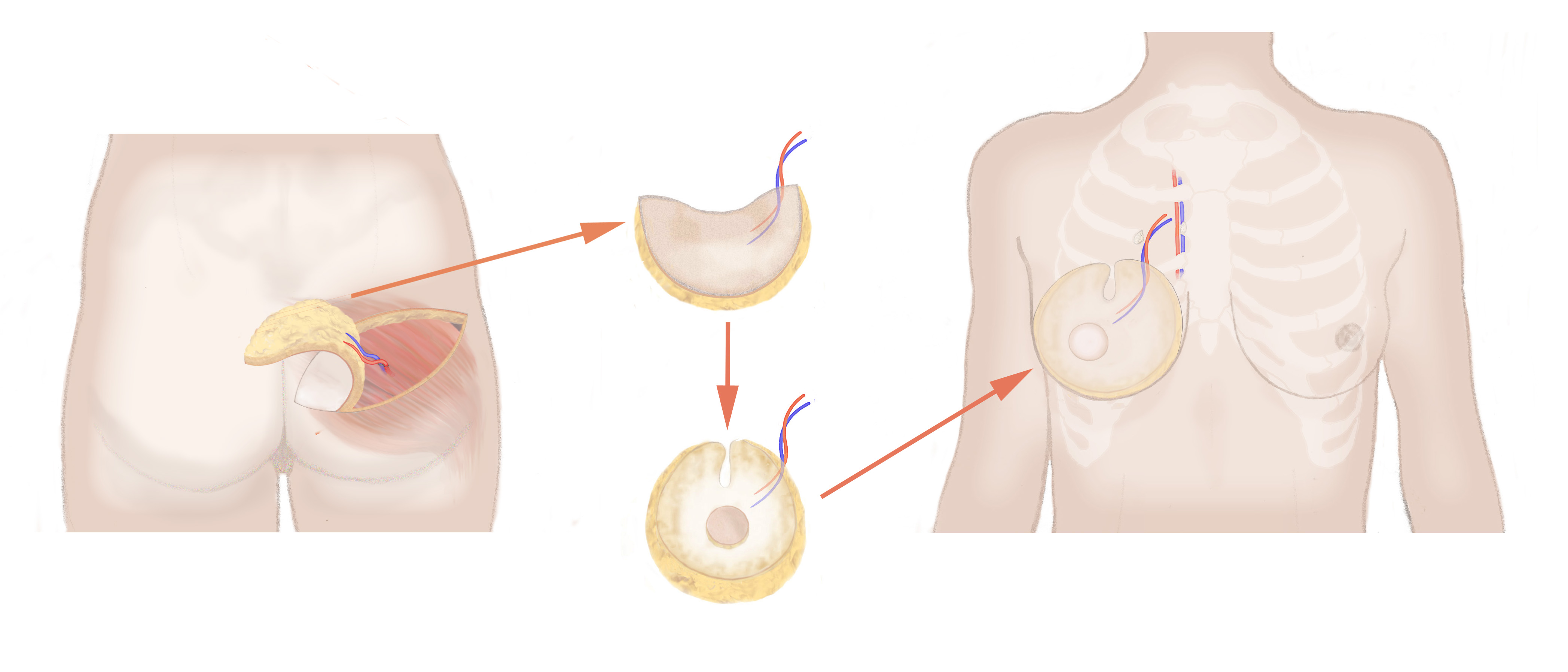SGAP_BREAST_RECONSTRUCTION