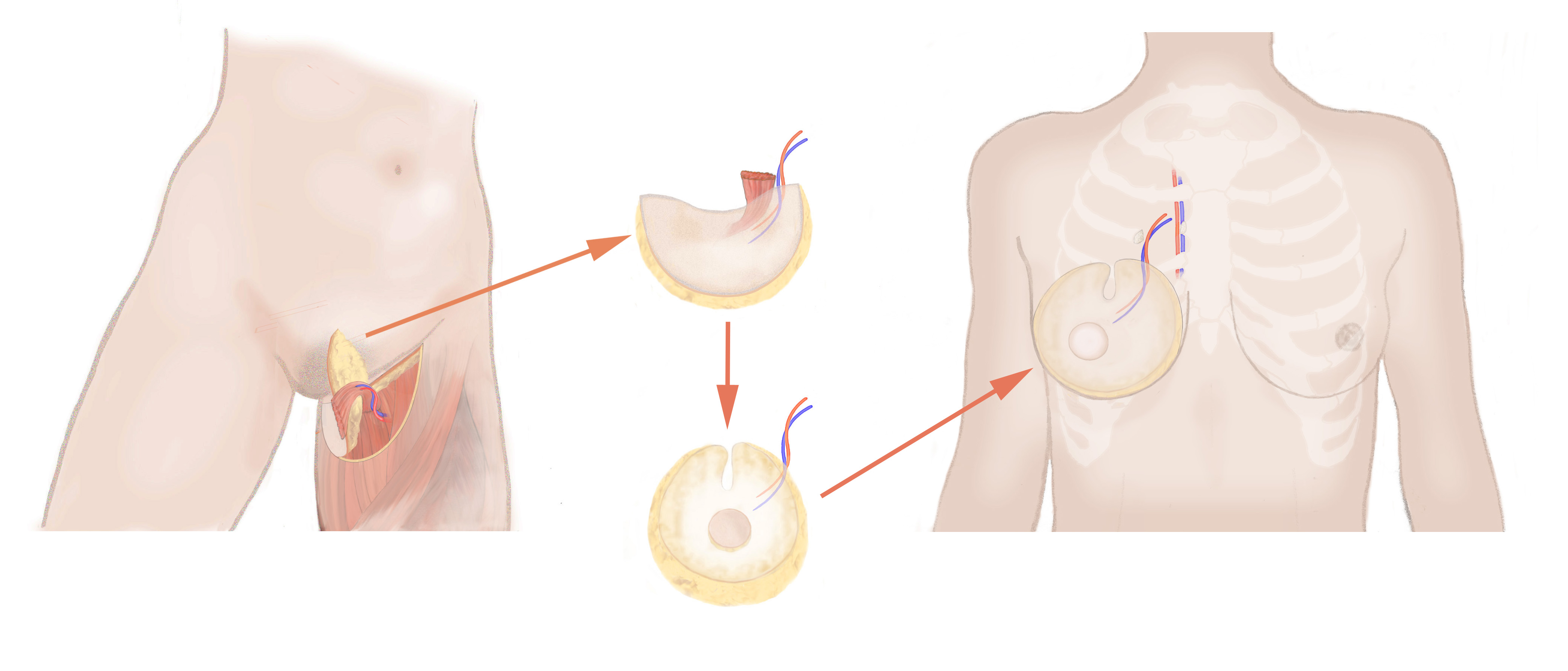 TMG_BREAST_RECONSTRUCTION